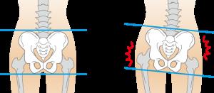 イラスト-骨盤の歪みイメージ